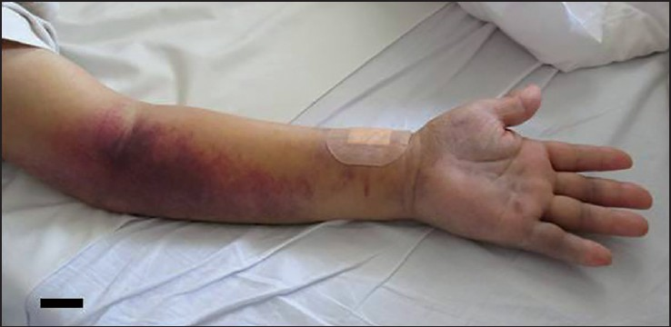 Figure 1: The image of swelling on the forearm 1 week after the operation. A massive subcutaneous hemorrhage was seen. A scale bar = 5 cm