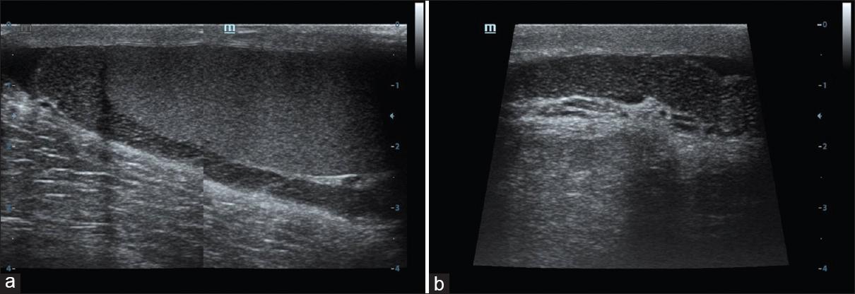 Ultrasound Spectrum Of Tubular Ectasia Of Rete Testis And Epididymis
