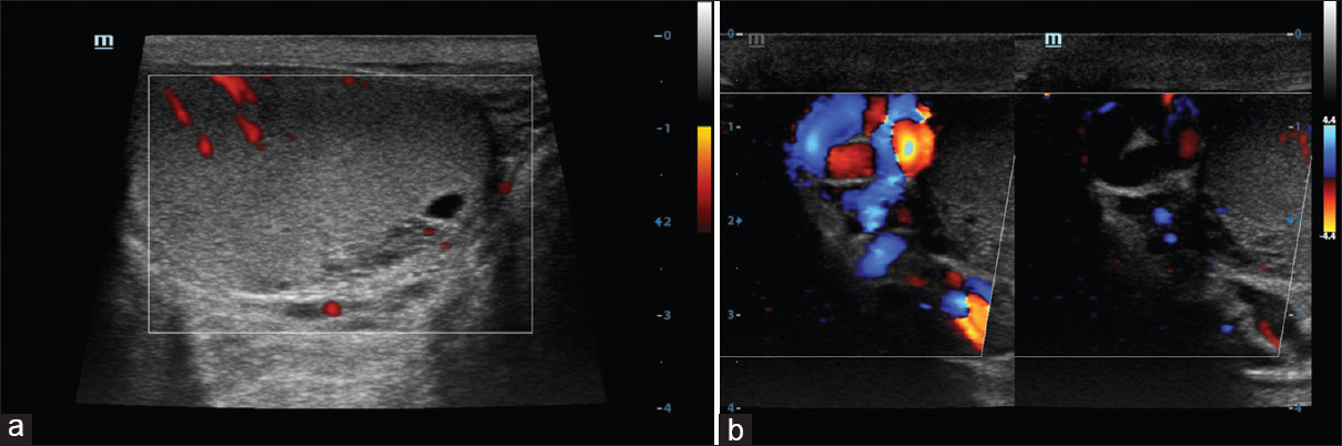Figure 13: (a) Color Doppler, axial scan of the right testis in a 42-year-old patient with scrotal pain shows small cyst at rete testis consistent with tubular ectasia. No color flow is noted in dilated tubule. (b) Color Doppler, axial scan of the left testis in 35-year-old patient for infertility evaluation shows color flow in dilated tubules suggestive of varicocele
