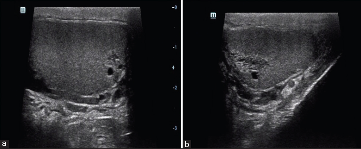 Ultrasound spectrum of tubular ectasia of rete testis and