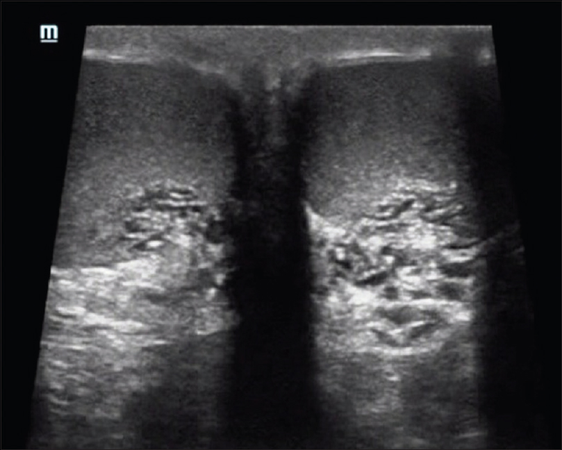 Figure 5: Mild tubular ectasia in a 40-year-old postvasectomy male presented with scrotal pain. Short-axis sonogram of both testis reveal mild tubular anechoic areas in bilateral rete testis
