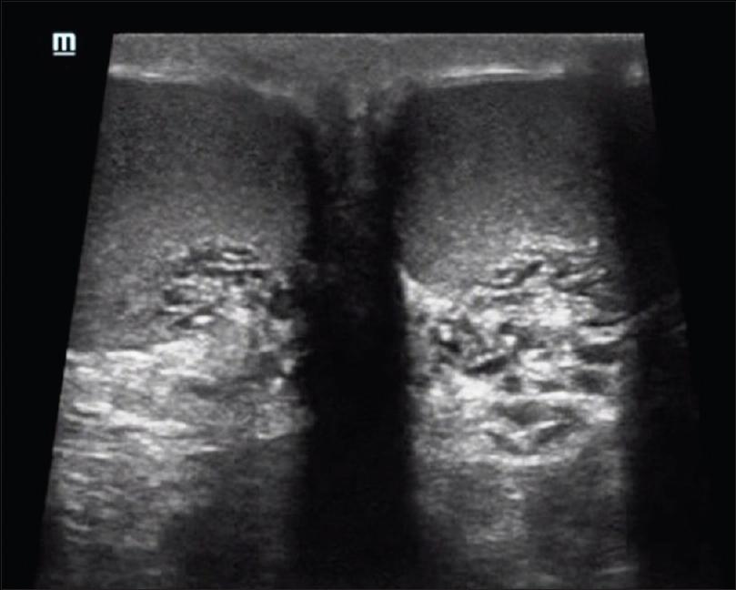 Ultrasound spectrum of tubular ectasia of rete testis and